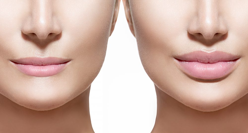 Lip Filler Treatment Logan