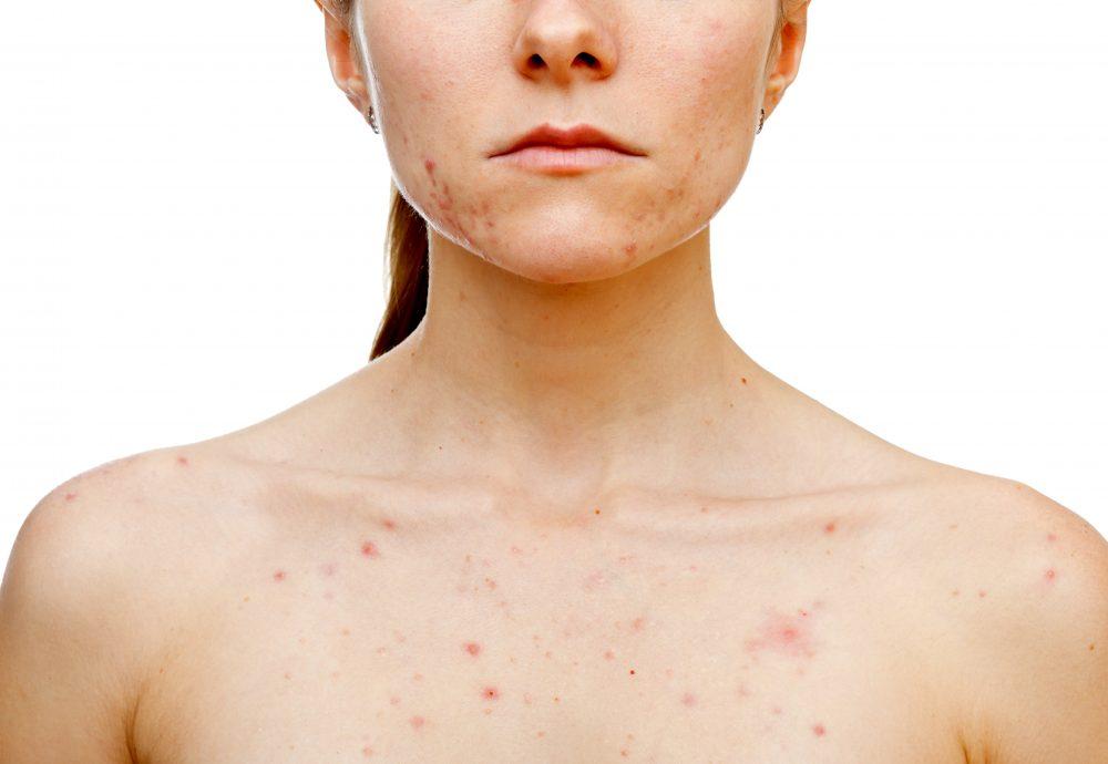 Dermatologist Brisbane