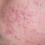 Skin Rashes Treatment Logan
