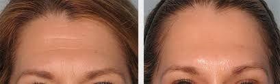 Non-Surgical Brow Lift Treatment Logan