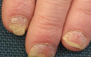 Skin Rashes Treatment