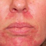 Cosmetic Skin Treatments Logan