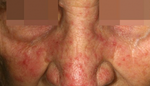 Psoriasis Treatment South