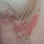 Paediatric Skin Conditions Kingston