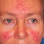 Paediatric Skin Conditions