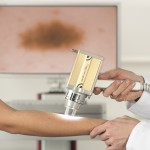 Skin Cancer Clinic Logan