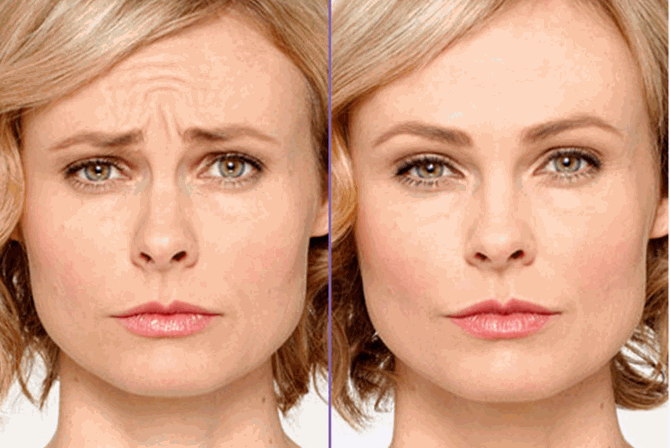 Anti-Wrinkle Injections South Brisbane